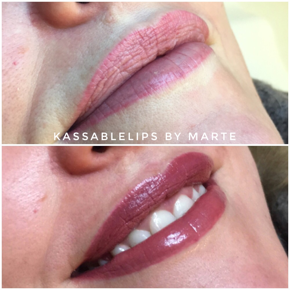 Permanente makeup – en behandling for alle.