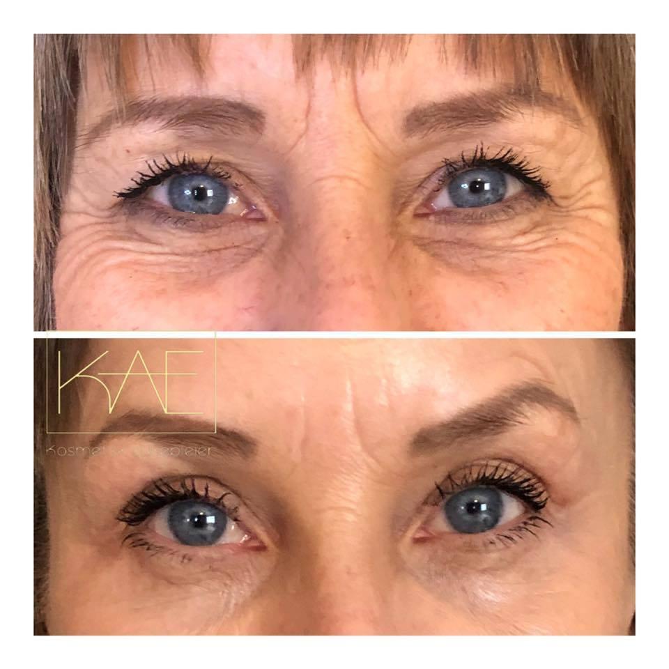Invisilift – Hudforbedring rundt øynene uten kirurgi