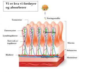 magesyre IBS irritabel tarm SIBO